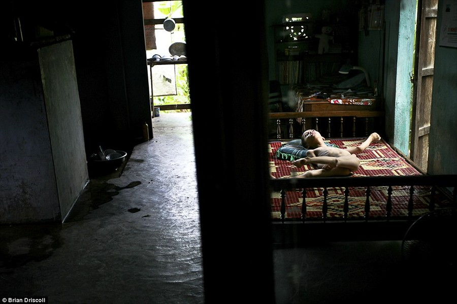 Daily torment: Nguyen Quang, 11, on his bed at home in the Kim Dong district of Hai Phong. Village leaders believe most of the children to be third generation Agent Orange victims due to the commonality in mental disorders and physical deformities