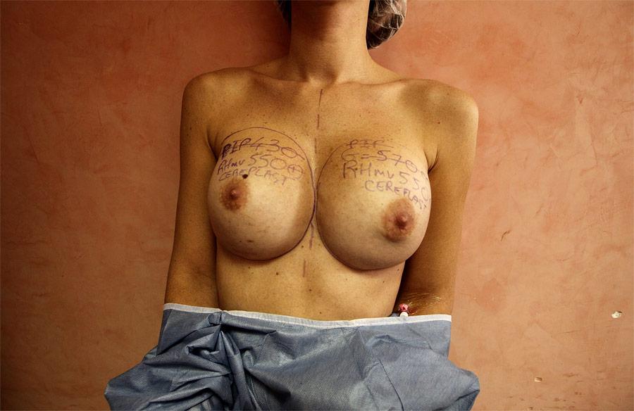 Пациентка вклинике вНицце перед операцией поизвлечению некачественных грудных имплантатов производства PIP. © Eric Gaillard/Reuters