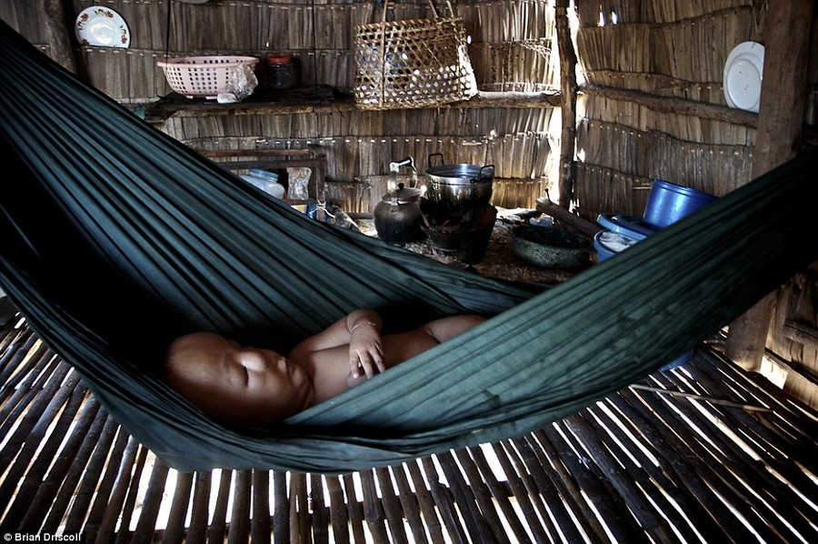 Heart-wrenching sight: Phirum Ung, 5, third generation Agent Orange victim, naps in a hammock at home in Beng Melea Province, Cambodia. Most days are spent with his mother pan-handling at the Angkor Wat Temples