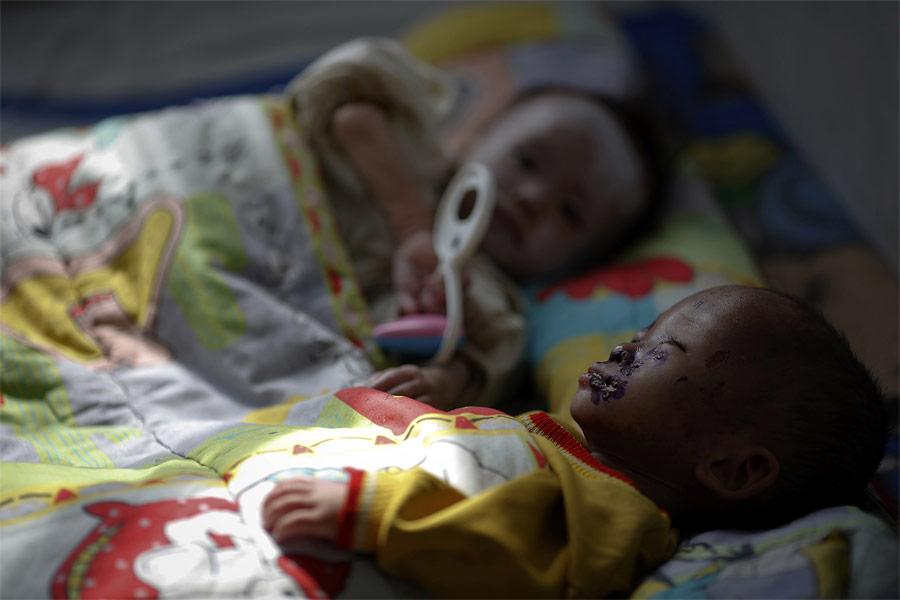 Дети, страдающие отнедоедания, вбольница города Хэджу. © Damir Sagolj/Reuters