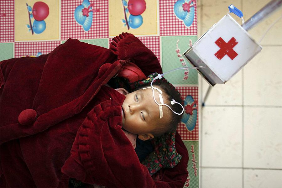 Ребенок, страдающий отсильного недоедания вбольнице города Хэджу. © Damir Sagolj/Reuters